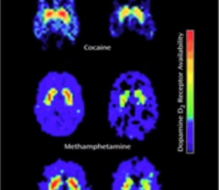 dopamine_brain_response